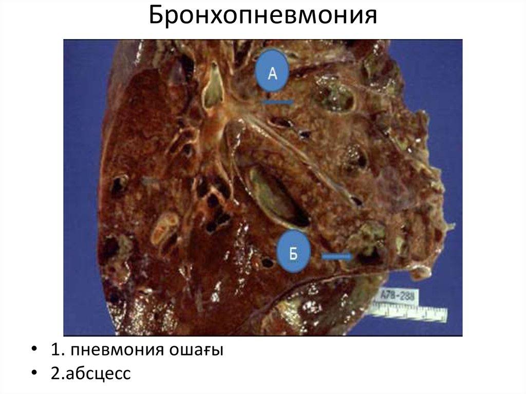 Катаральная пневмония