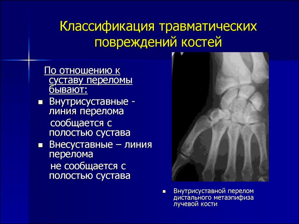 Лучевая диагностика травматических повреждений костей и суставов апораты для разроботки локтевова сустава