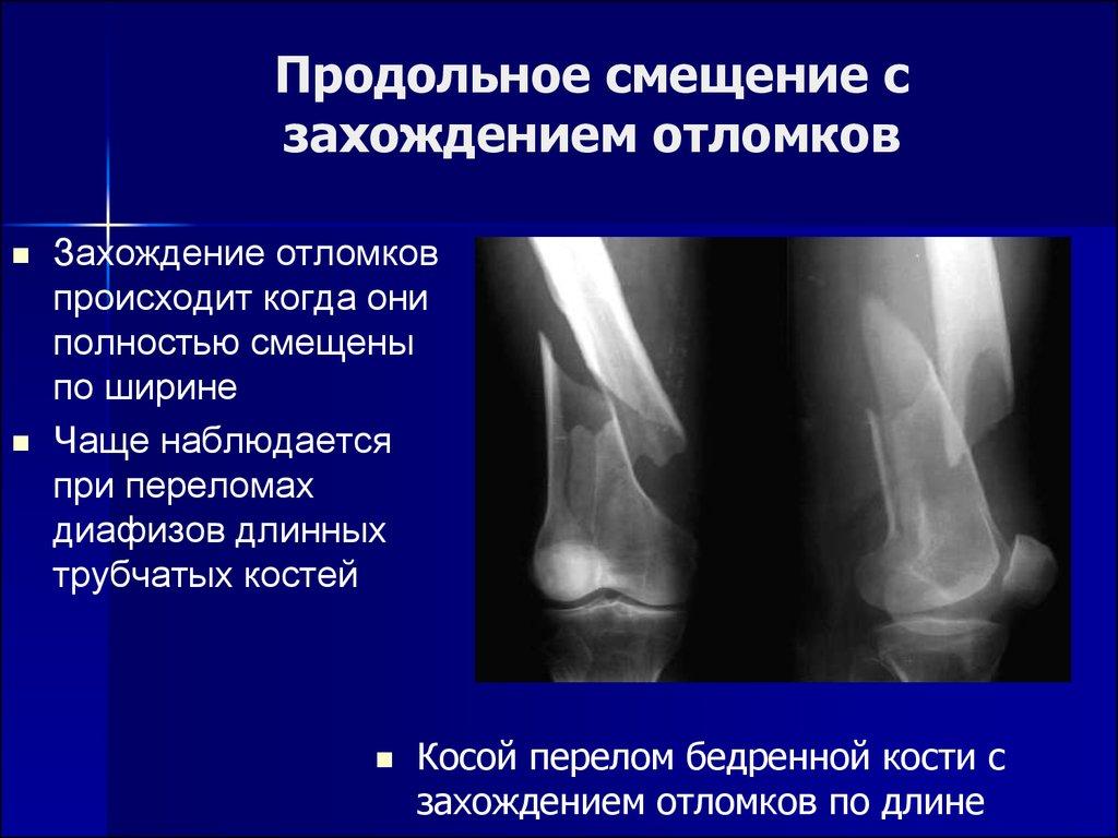 Рентгенодиагностика заболевания костно суставной системы у животных узи коленного сустава в стерлитамаке