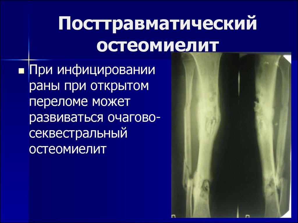 простатит и остеомиелит