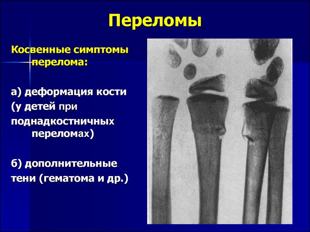 Перелом лучевой кости симптомы