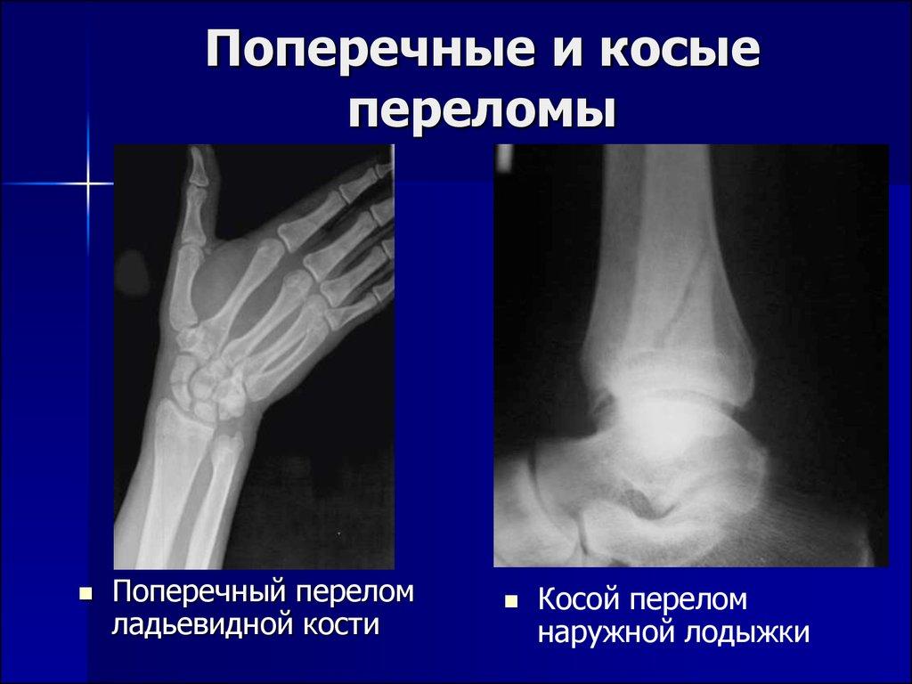 Рентгенодиагностика заболевания костно суставной системы у животных узи тазобедренных суставов у грудничков в минске нордин