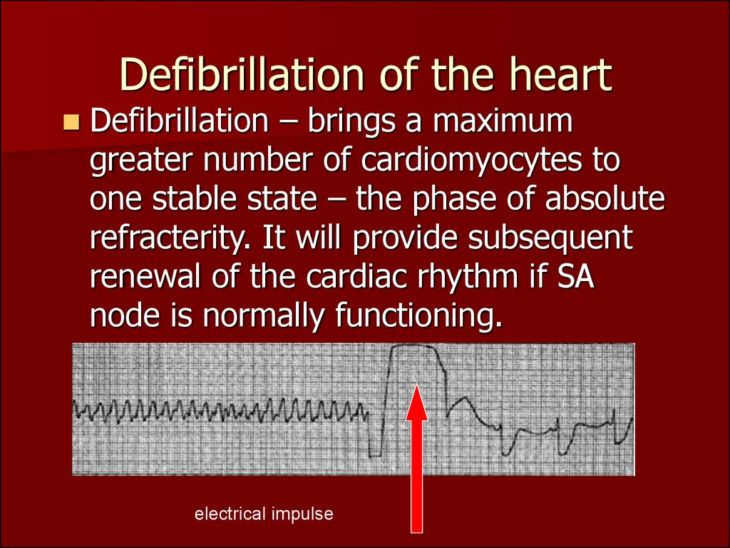 Defibrillation of the heart