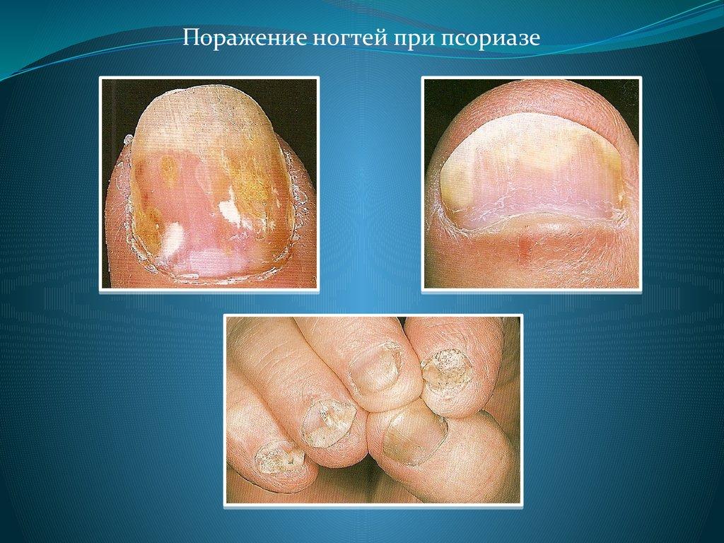 Красный плоский лишай симптомы и лечение фото у человека