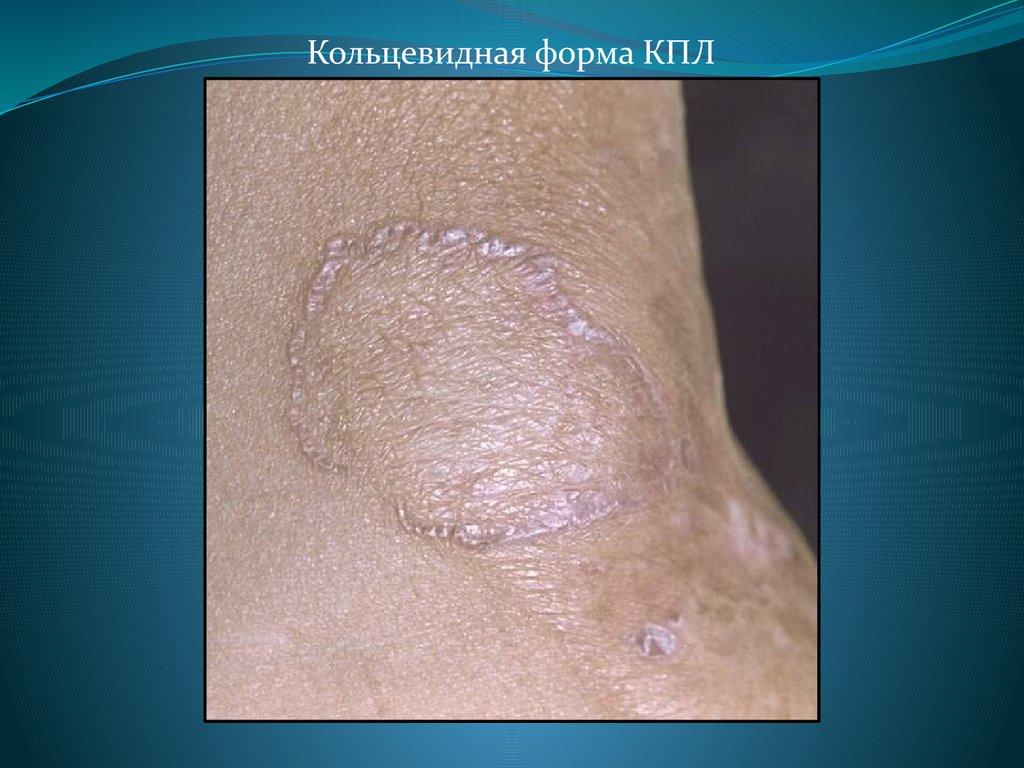 Дифференциальная диагностика псориаза и красного плоского лишая