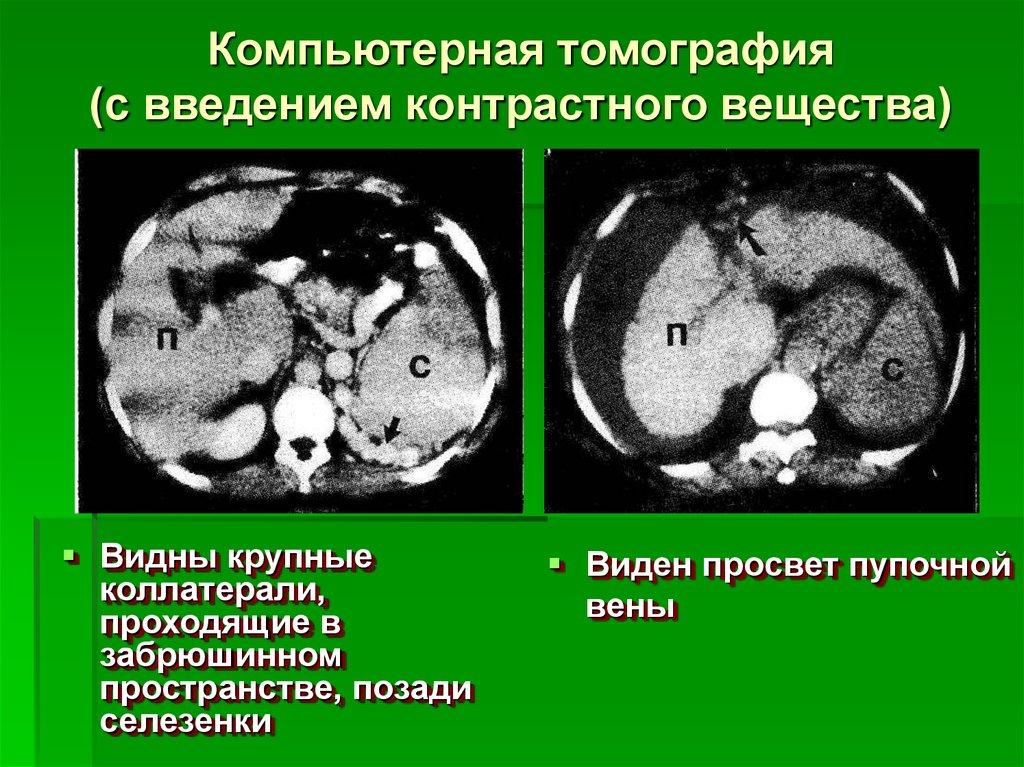 Компьютерная томография с контрастированием цена