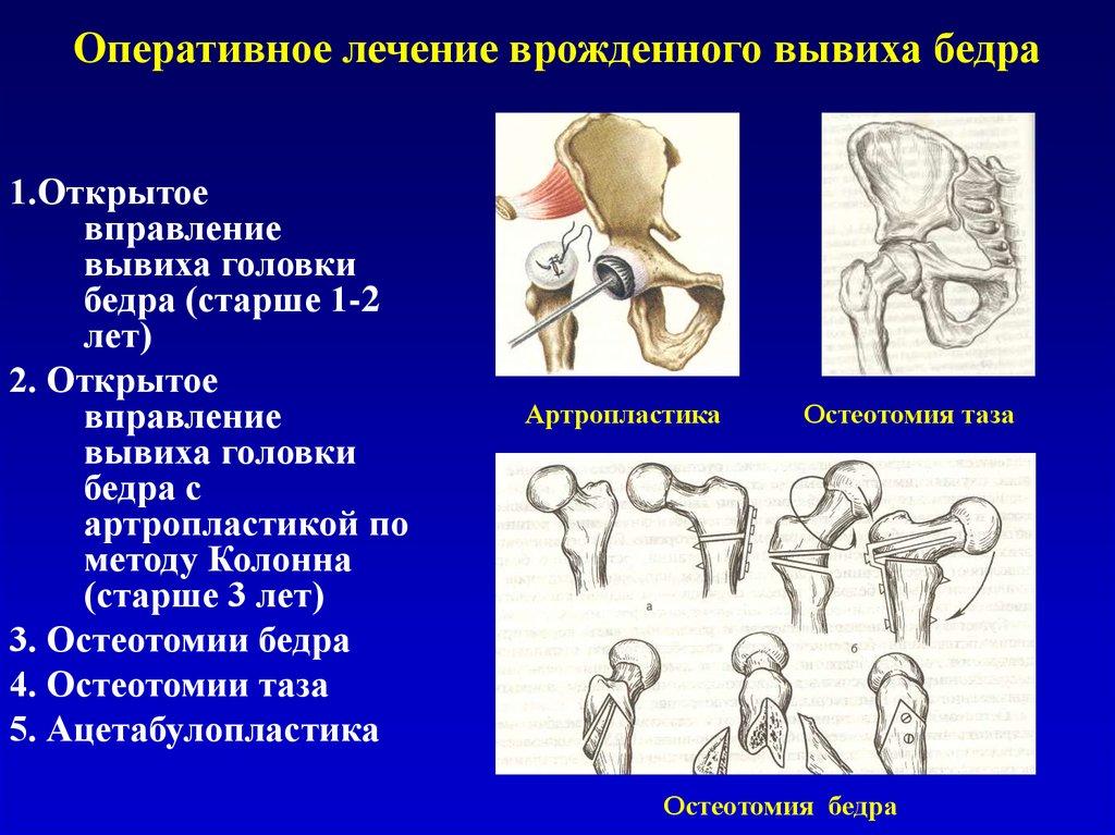 артроскопия коленного сустава в херсоне цена