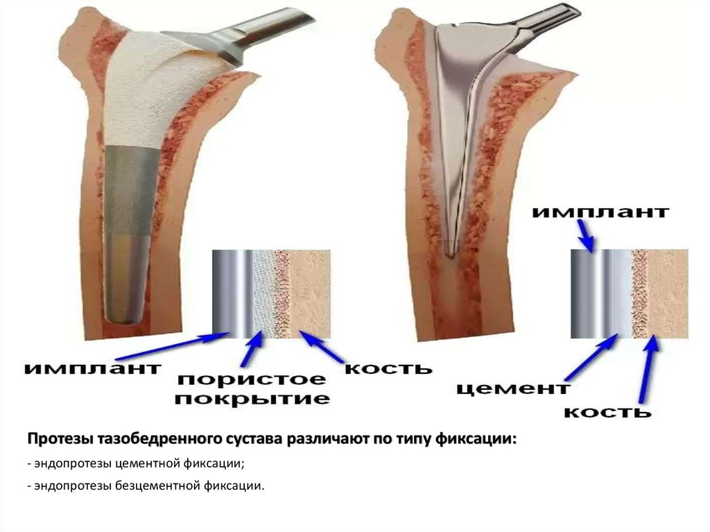 лечение колееного сустава народным методом