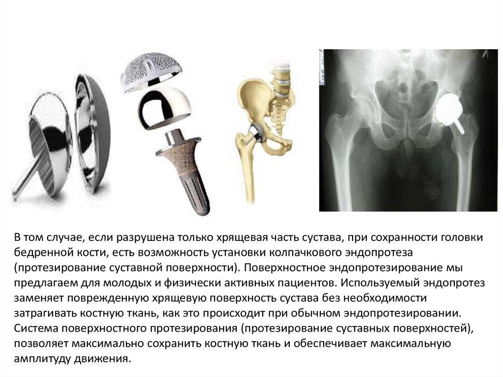Protek протезы суставов лекарства для лечение артрита коленного сустава