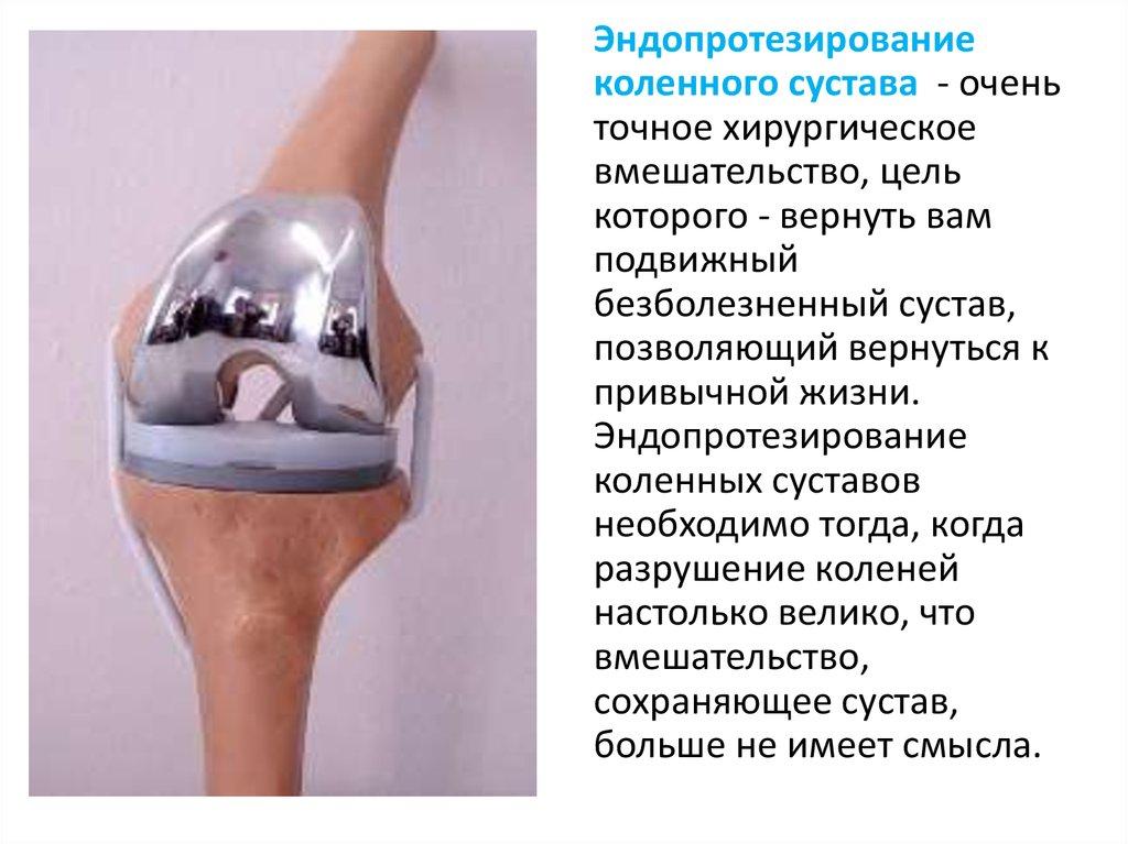 Доклад эндопротезирование коленного сустава 5872