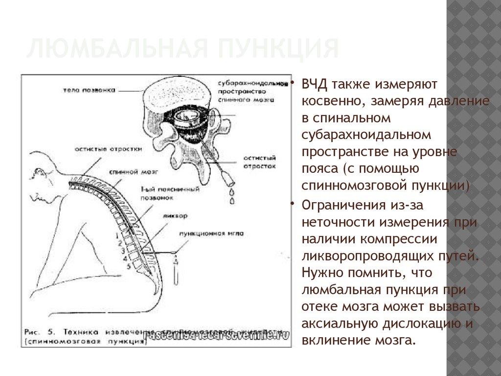 Где измерить внутричерепное давление в новосибирске