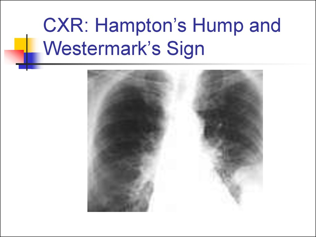 CXR: Hampton's Hump and Westermark's Sign