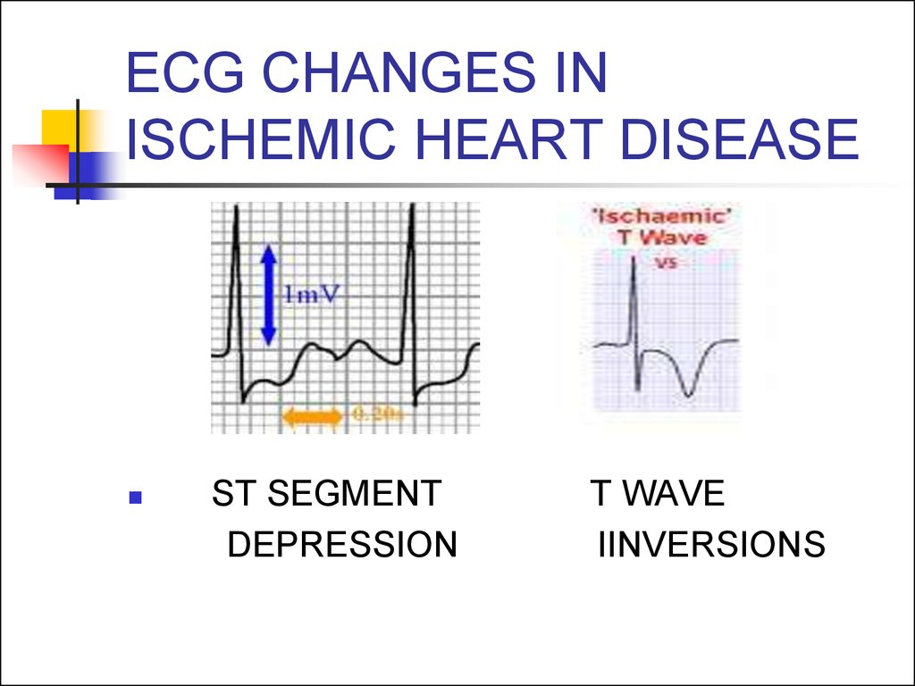 EСG CHANGES IN ISCHEMIC HEART DISEASE