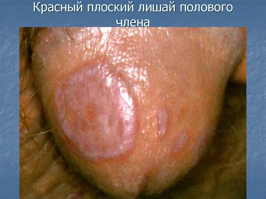 Реферат на тему стор я хвороби - шк рн хвороби (великий псор аз) скачати