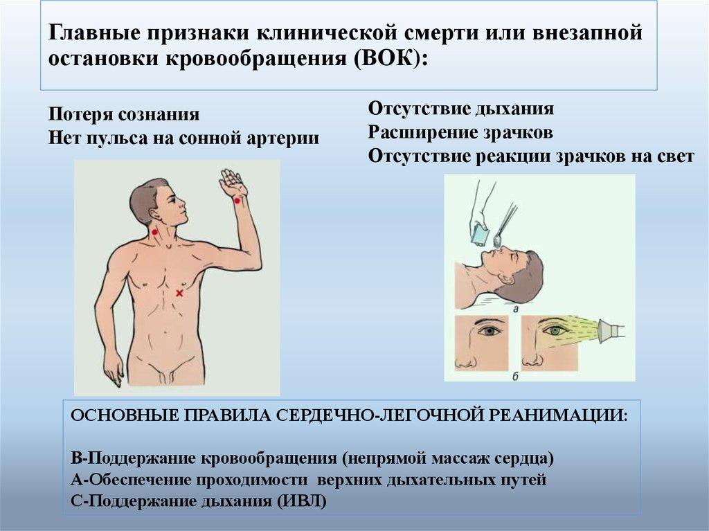 Главным клинической что признаком является не смерти