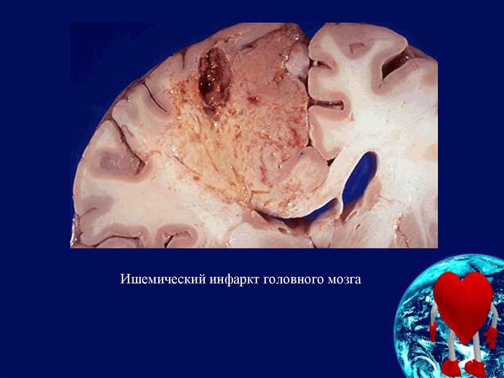 Ишемия головного мозга википедия