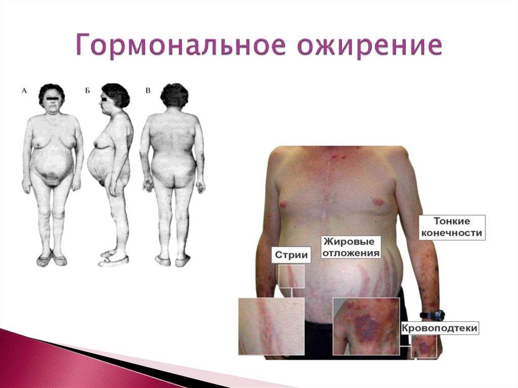 Похудение Как Симптом Гормонального Сбоя.