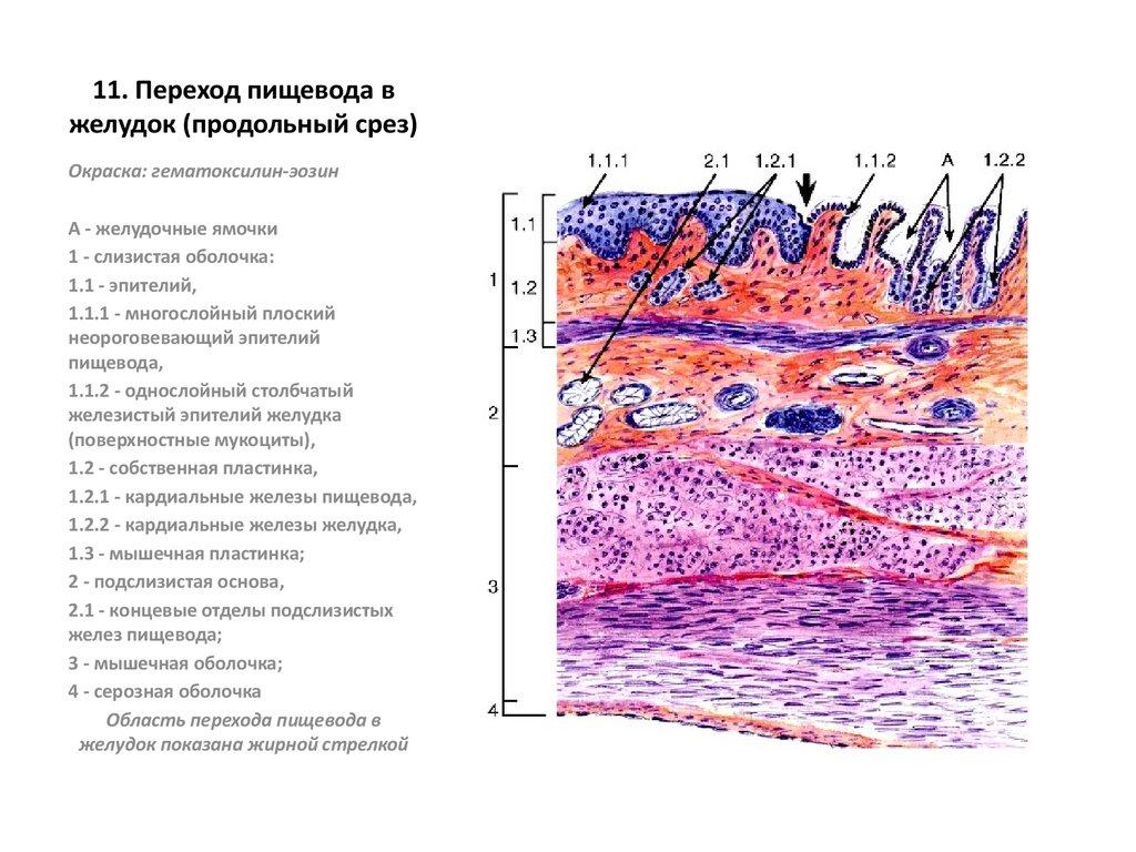 новость пришла препарат пищевода гистология картинка экологическая обстановка одно