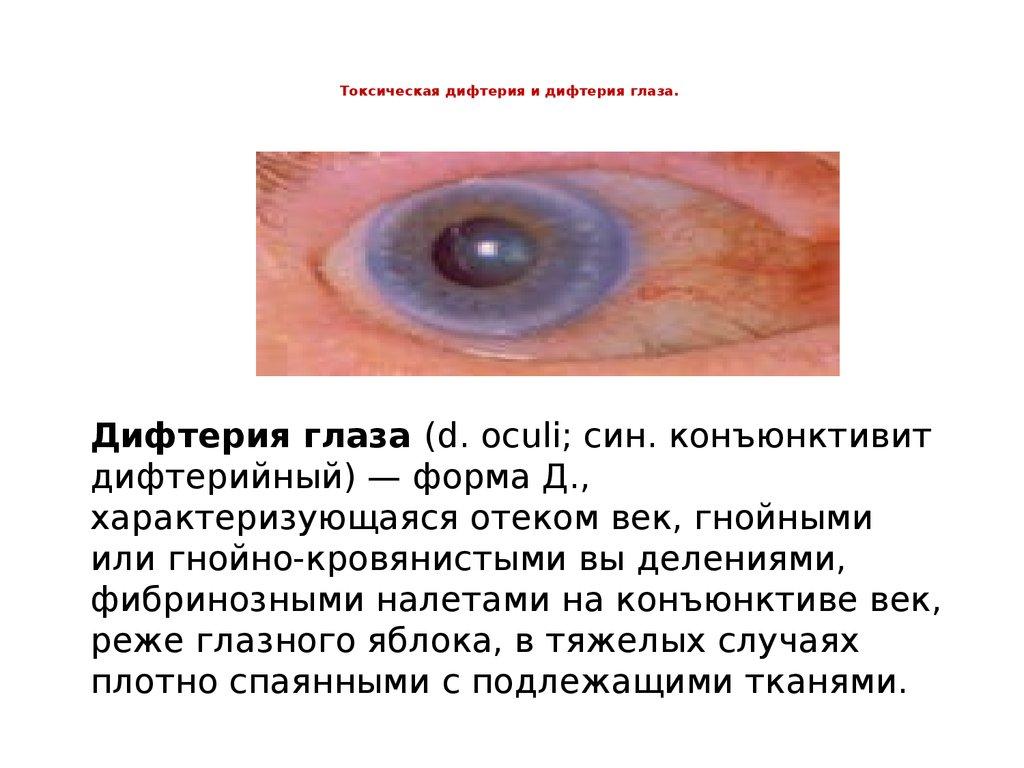 здоровая дифтерии глаза картинки очищает
