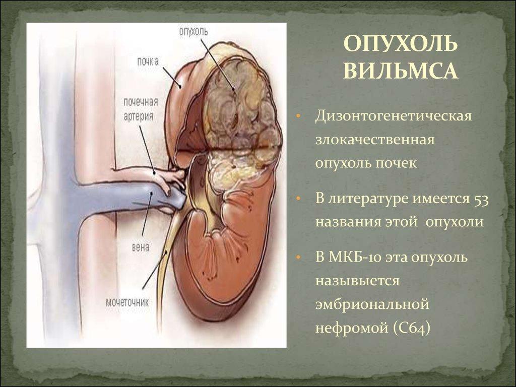 злокачественная опухоль 3 стадия
