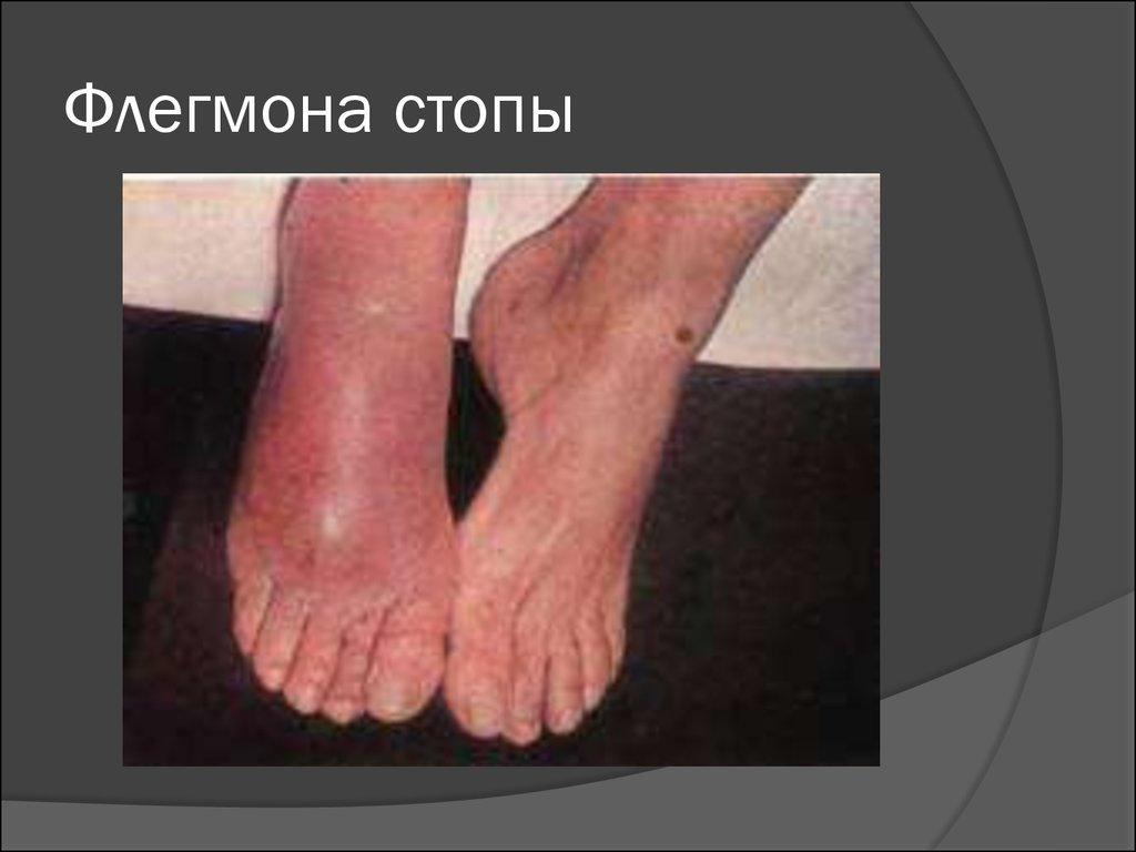Флегмона голеностопного сустава фото на какой курорт нужно отправиться если болят суставы
