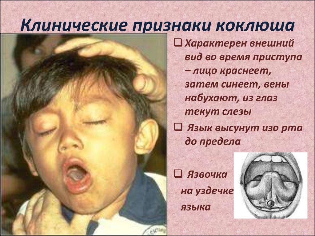 сестринская помощь при аллергии у детей