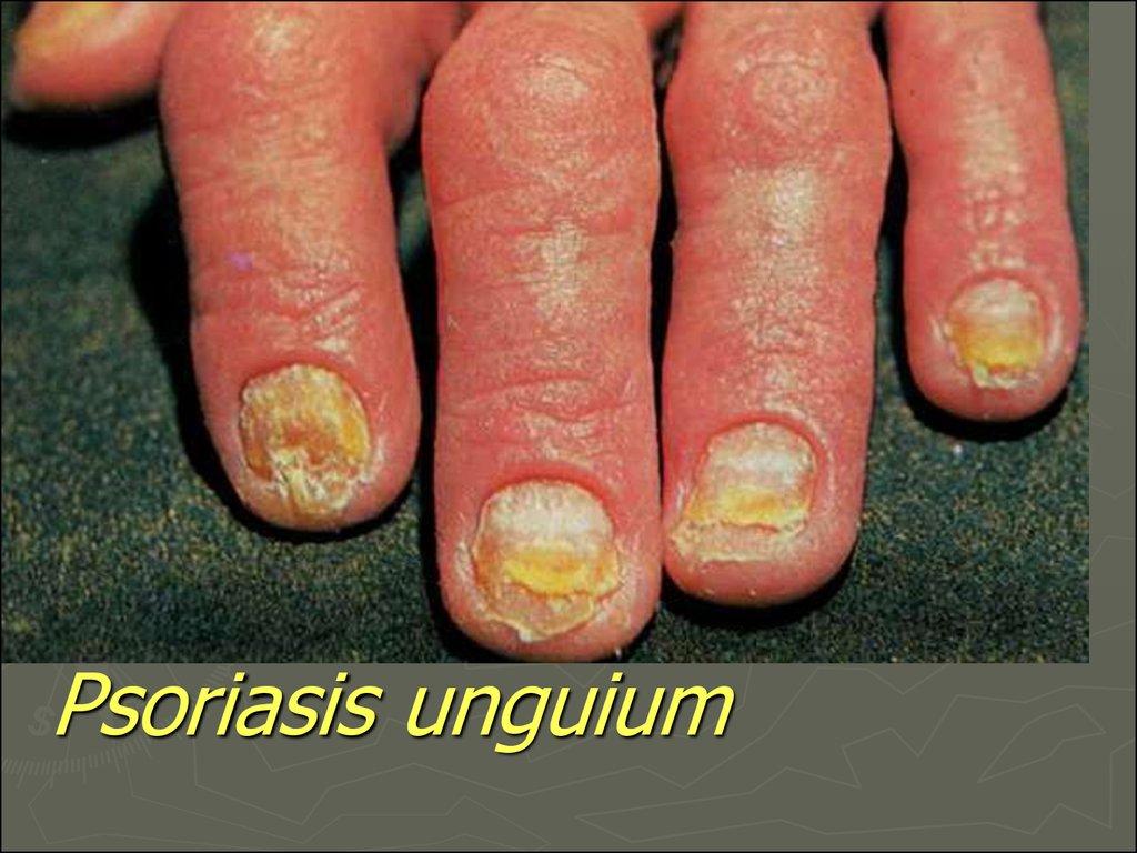 psoriasis unguium