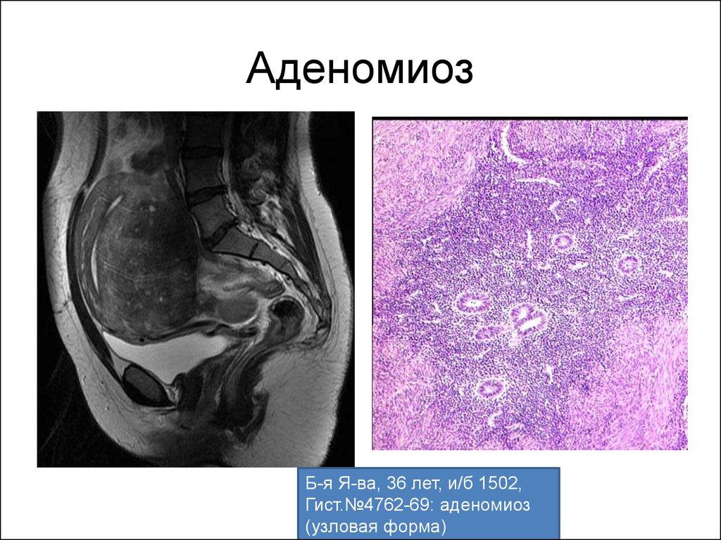 Очаговый аденомиоз матки лечение