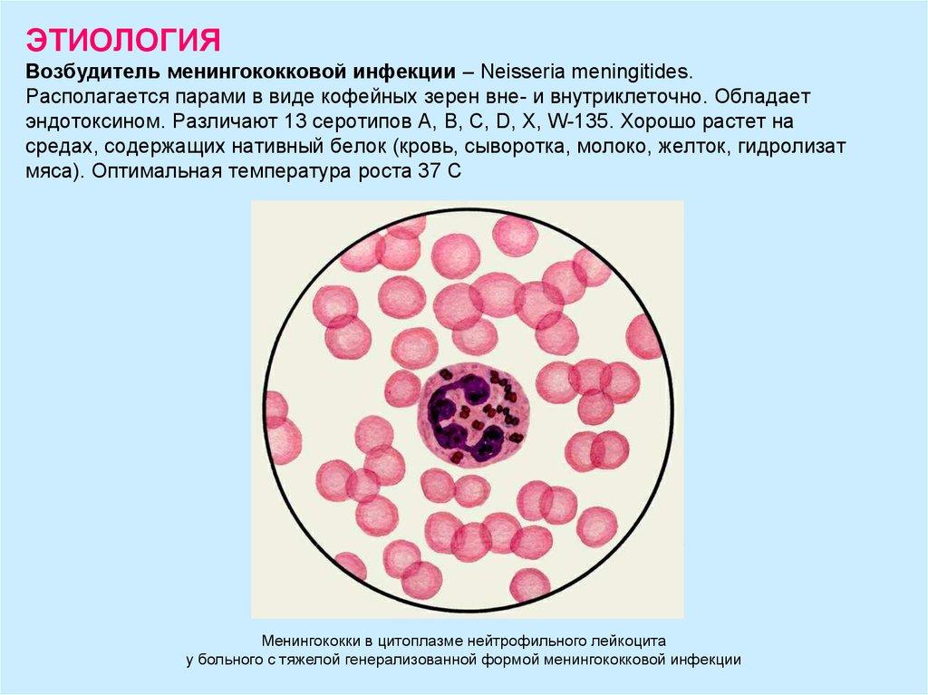 Возбудитель менингококковой инфекции лабораторная диагностика