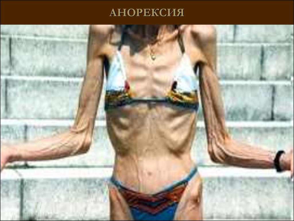 anorexia abnormal psychology Study 39 eating disorders flashcards from salina b on studyblue.
