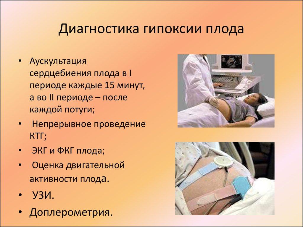 Диагностика внутриутробной гипоксии плода