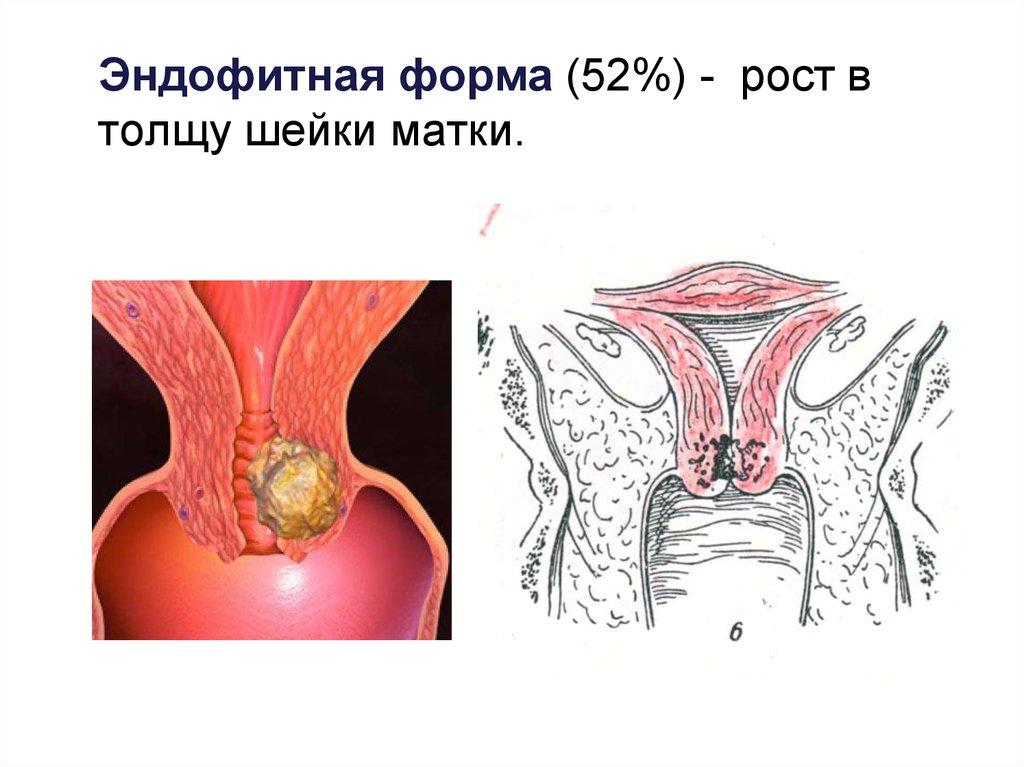 Форма женских органов онлайн