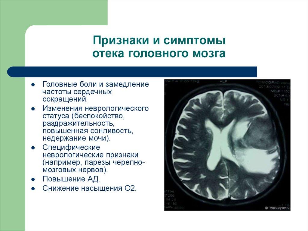 Отек головного мозга прогноз