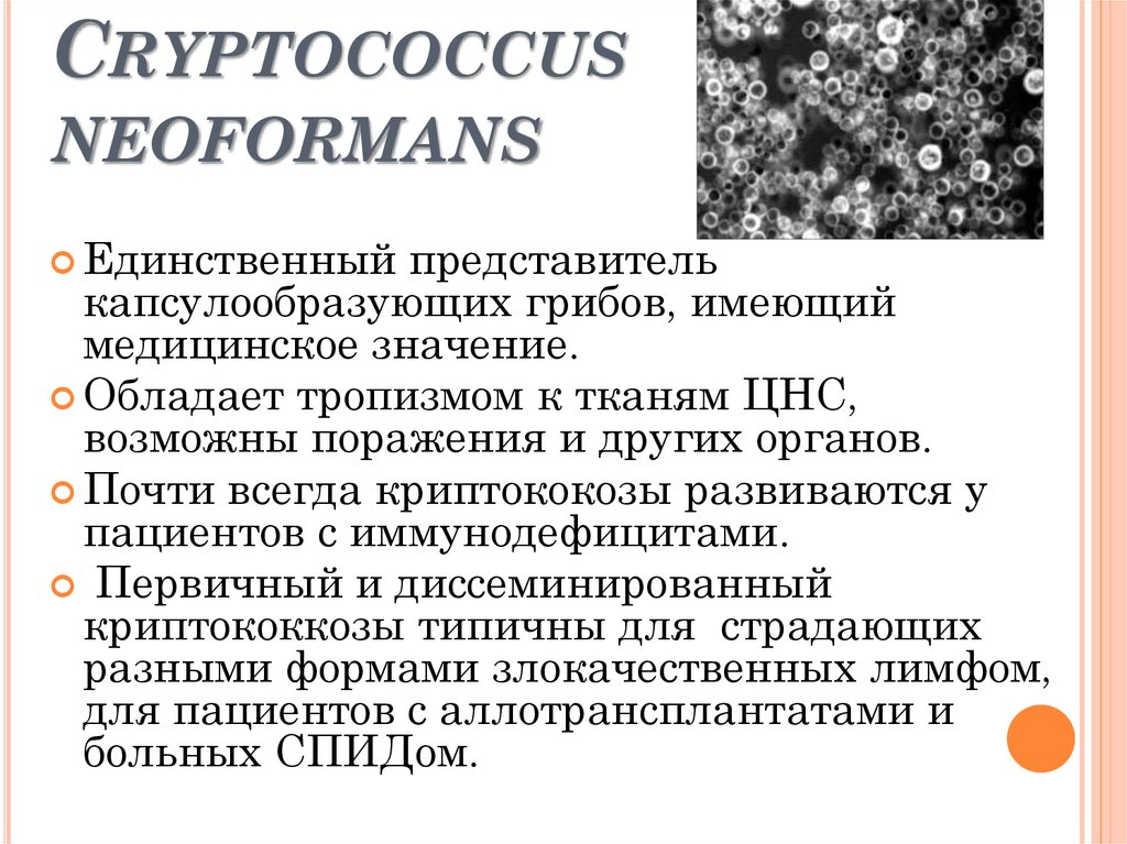 a study on the organism cryptococcus neoformans an encapsulated yeast Isolation of cryptococcus spp and histoplasma capsulatum from caused by an encapsulated basidiomycetes yeast belonging to of cryptococcus neoformans 2.