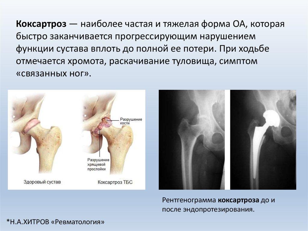 Остеартроз и степени нарушения функции сустава лечение суставов остенил плюс