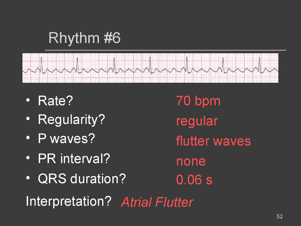 Ecg interpretations  How to analyze a rhythm  Normal sinus