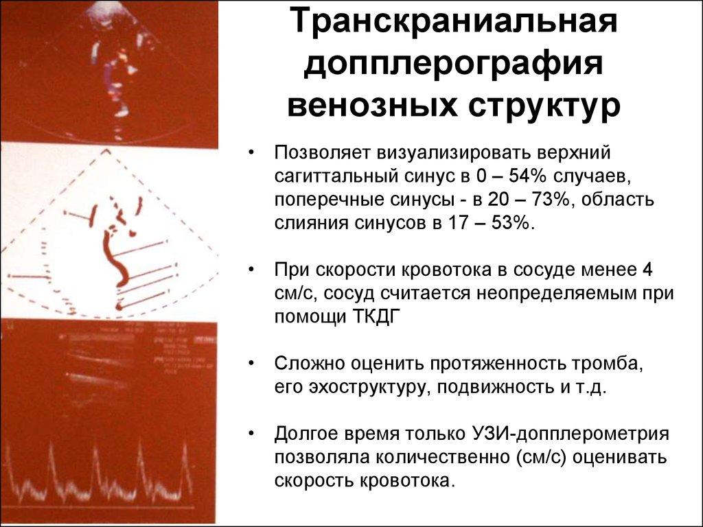 Транскраниальное узи сосудов головного мозга