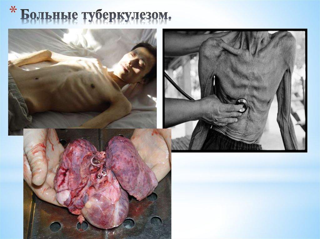 Картинки люди болеющие туберкулезом