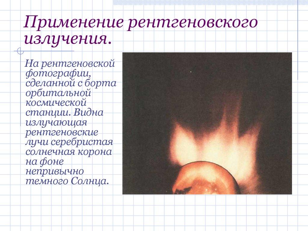 Применение рентгеновских пленок