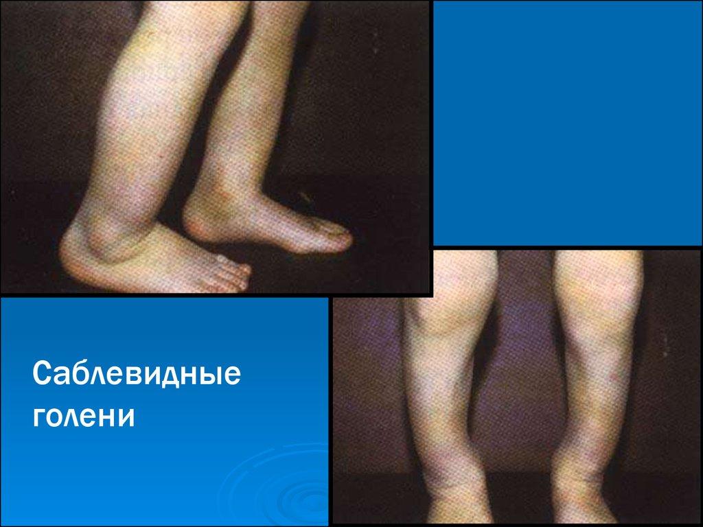 саблевидные голени фото