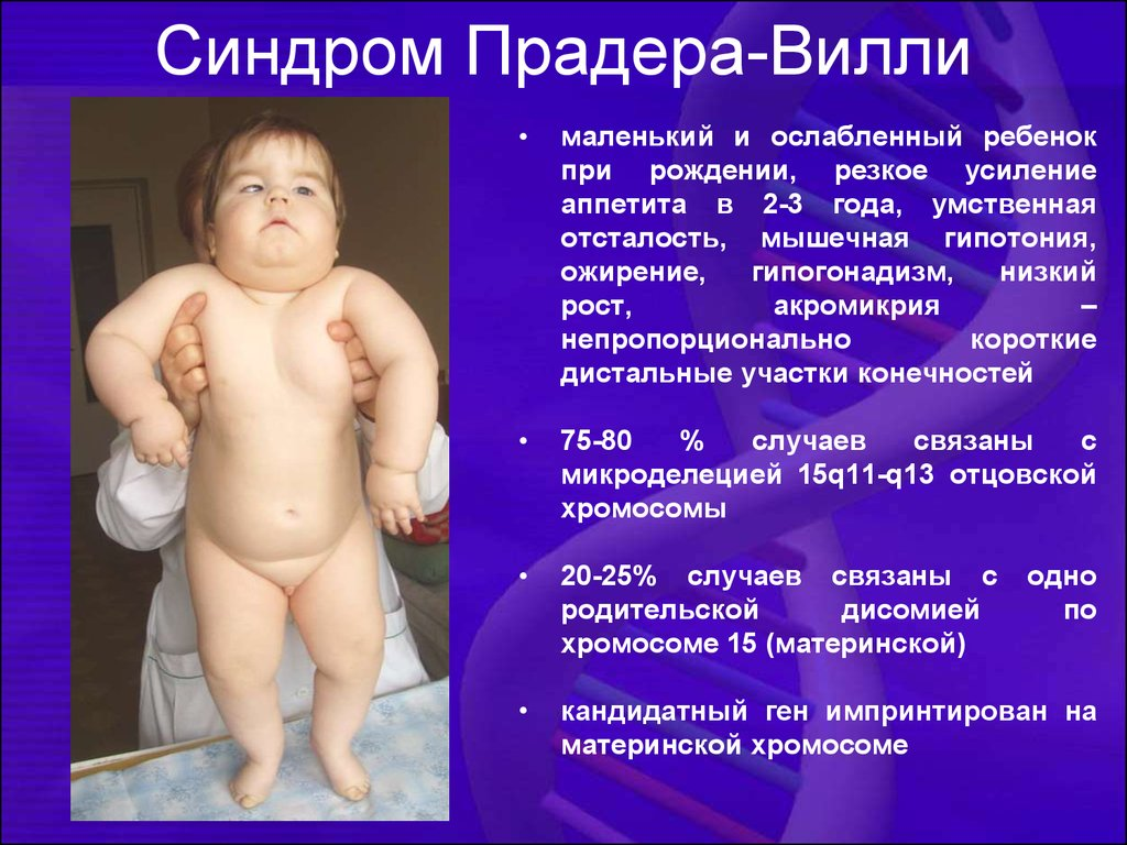 prader willi syndrome essay According to the prader-willi syndrome association, pws is increasingly seen as a multistage syndrome in phase 2, at 18 to 36 months, the child's weight crosses over.