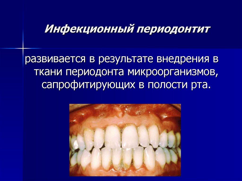 Периодонтит и имплантация зубов при периодонтите