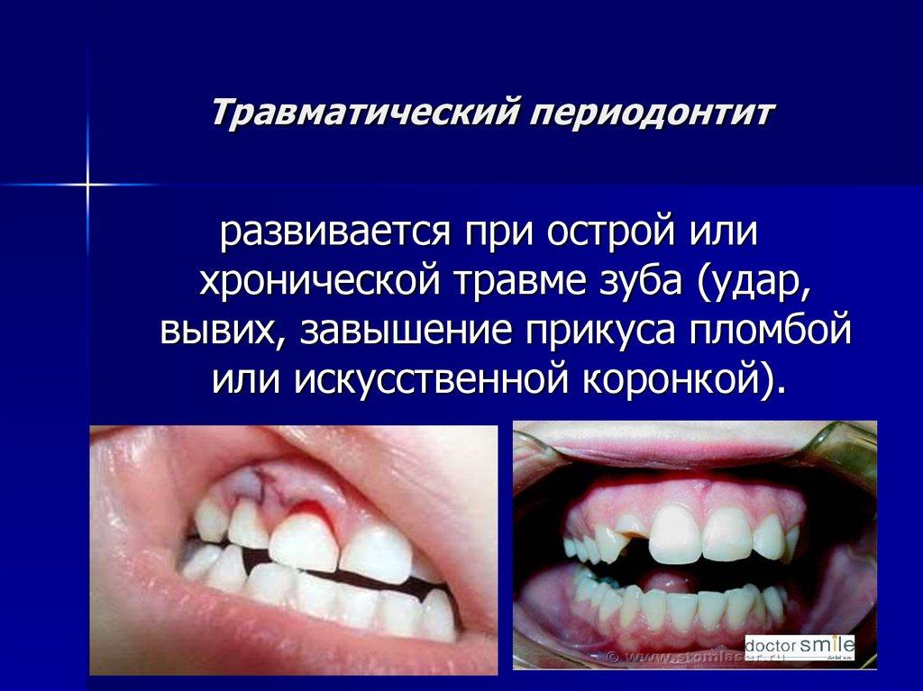 Имплантация зубов периодонтит — Болезни полости рта
