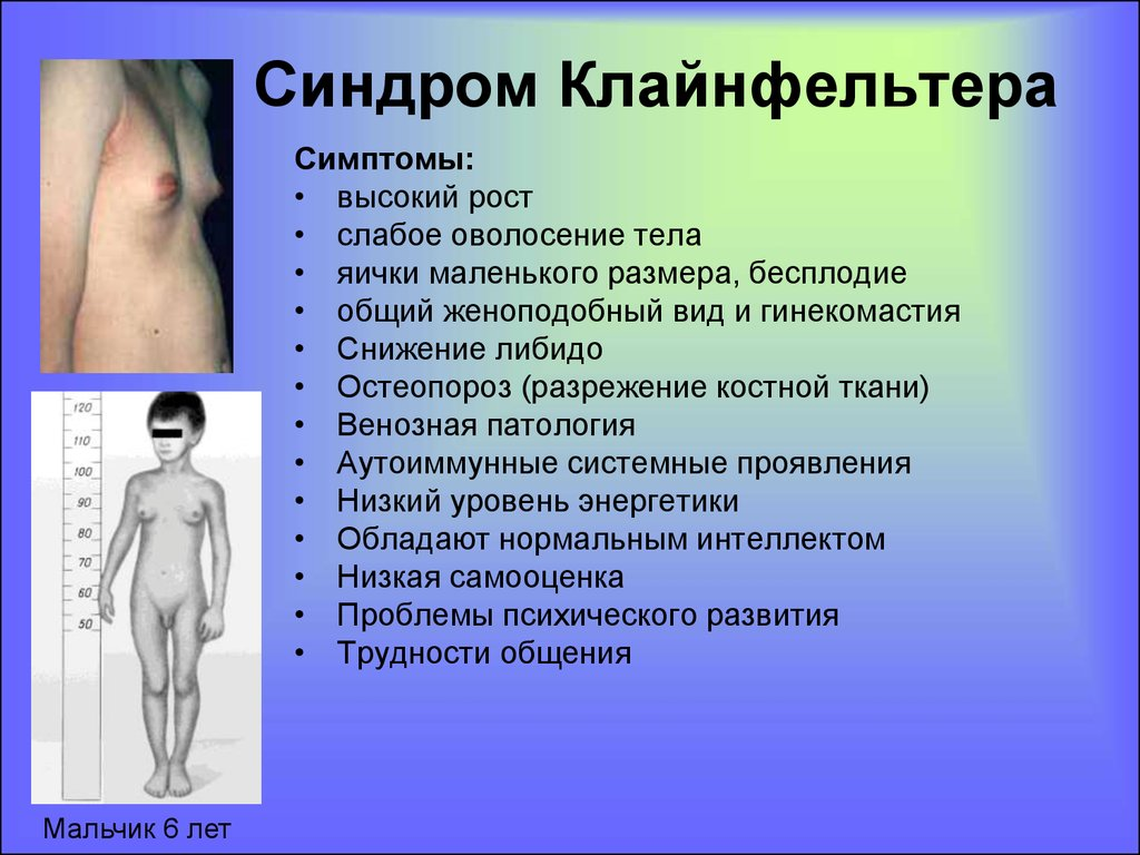 an analysis of the klinefelters syndrome and the genetic disorder Klinefelter syndrome (ks), with a prevalence of 1 in 600-1000 newborn males , is one of the most common sex-chromosome disorders men affected by ks carry one or more extra x-chromosome and the classic aneuploidy, observed in about the 80% of the cases, presents a 47,xxy karyotype.