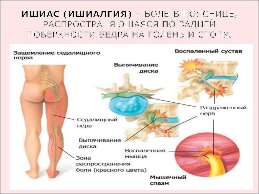 Чем лечить защемление седалищного нерва медикаментозное лечение