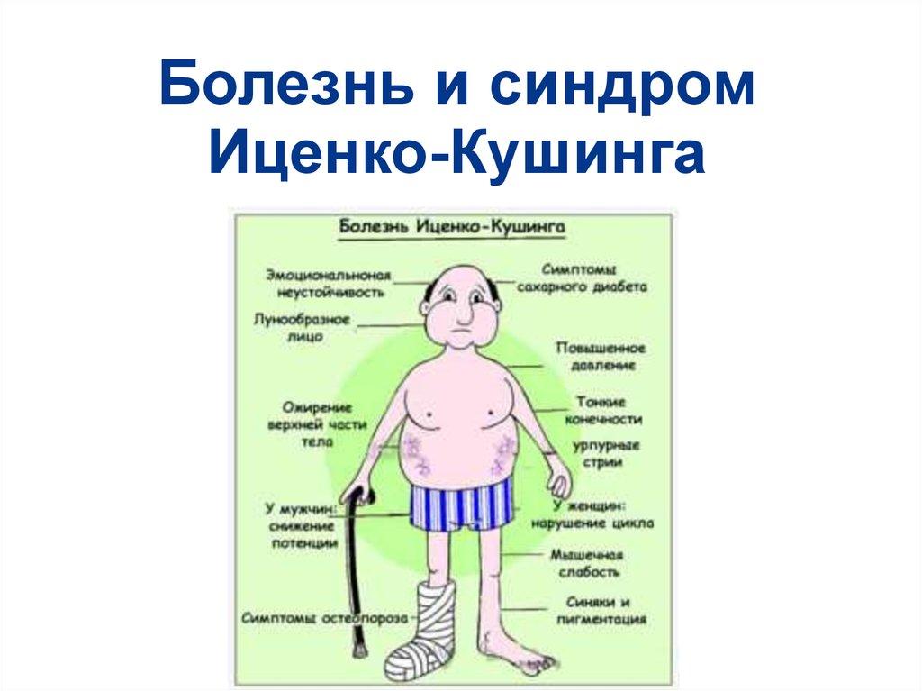 иценко кушинга синдром фото