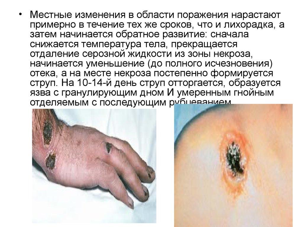 Сибирская язва: что такое, причины, симптомы, лечение, профилактика, фото