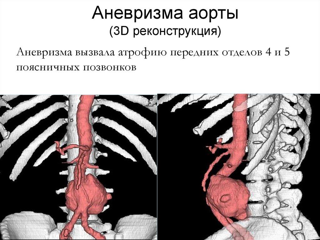 картинки аневризм аорты потом, развитии