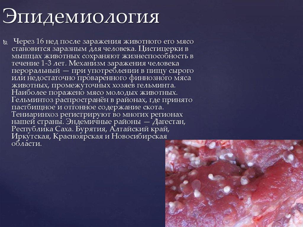 Эпидемиология