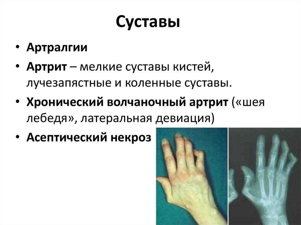 артроз мелких суставов рук симптомы лечение